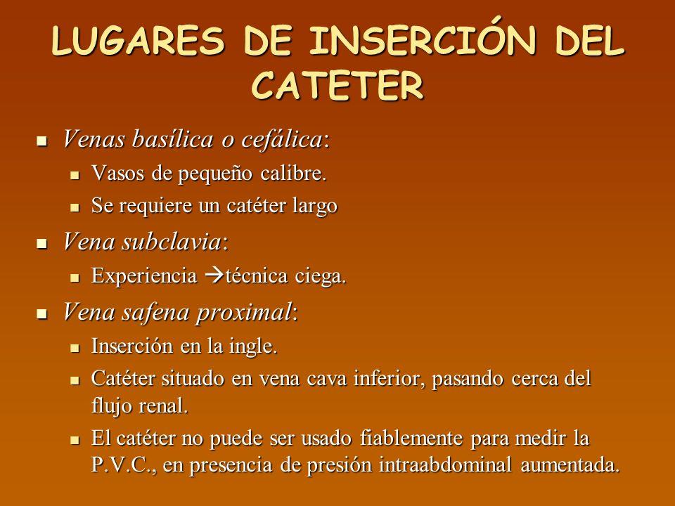 LUGARES DE INSERCIÓN DEL CATETER