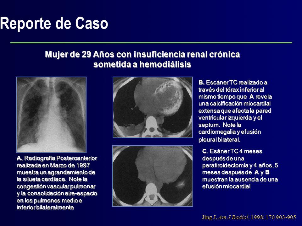 Reporte de Caso Mujer de 29 Años con insuficiencia renal crónica sometida a hemodiálisis.