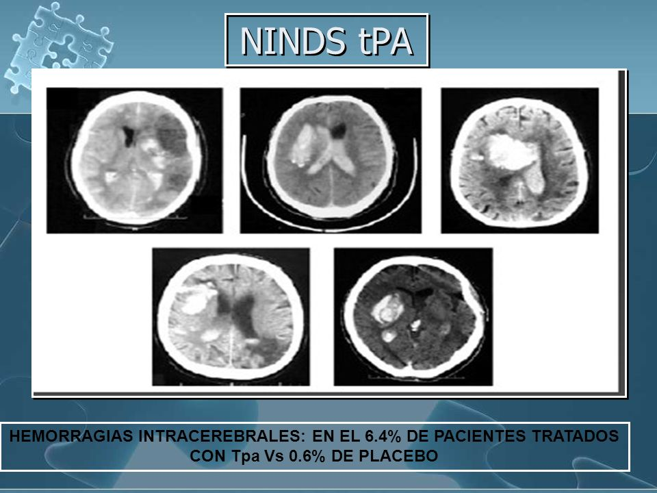 NINDS tPA HEMORRAGIAS INTRACEREBRALES: EN EL 6.4% DE PACIENTES TRATADOS CON Tpa Vs 0.6% DE PLACEBO