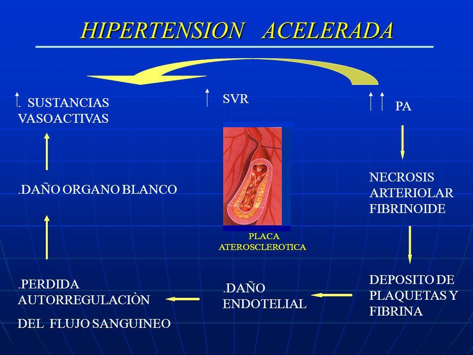 HIPERTENSION ACELERADA