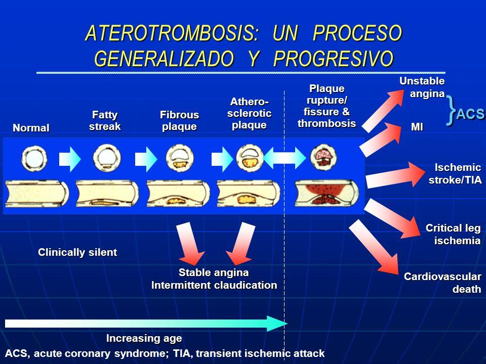 ATEROTROMBOSIS: UN PROCESO GENERALIZADO Y PROGRESIVO