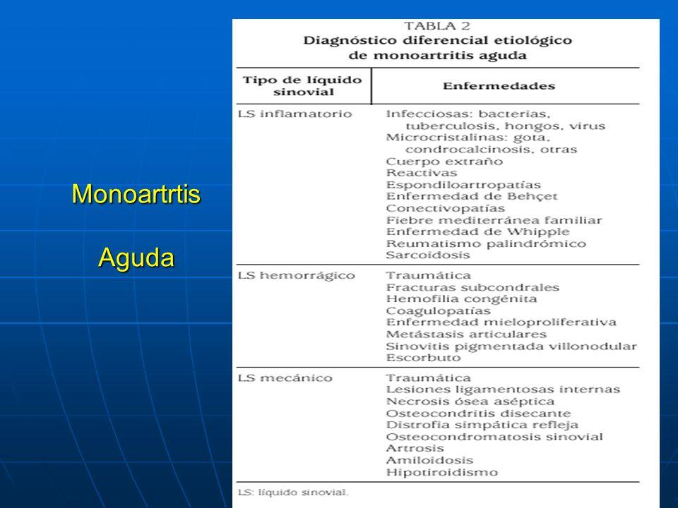 Monoartrtis Aguda