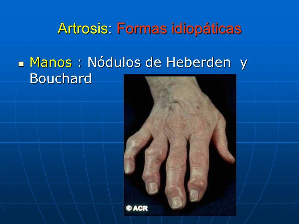 Artrosis: Formas idiopáticas