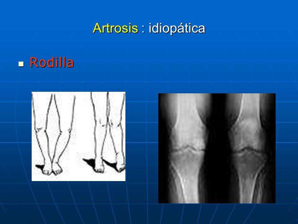 Artrosis : idiopática Rodilla