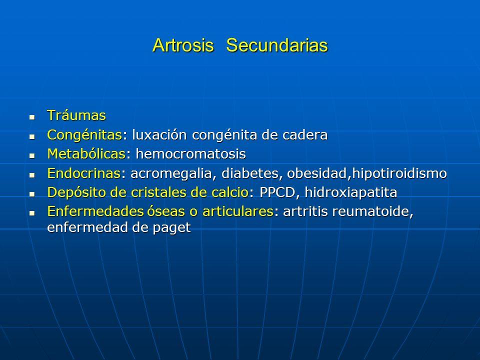 Artrosis Secundarias Tráumas Congénitas: luxación congénita de cadera