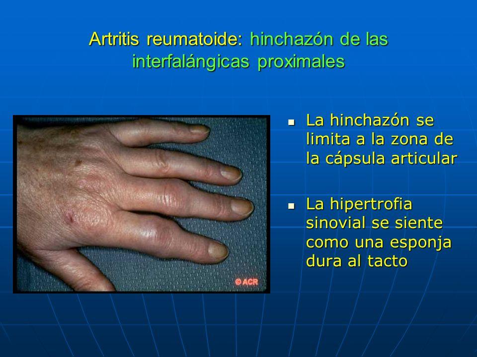 Artritis reumatoide: hinchazón de las interfalángicas proximales