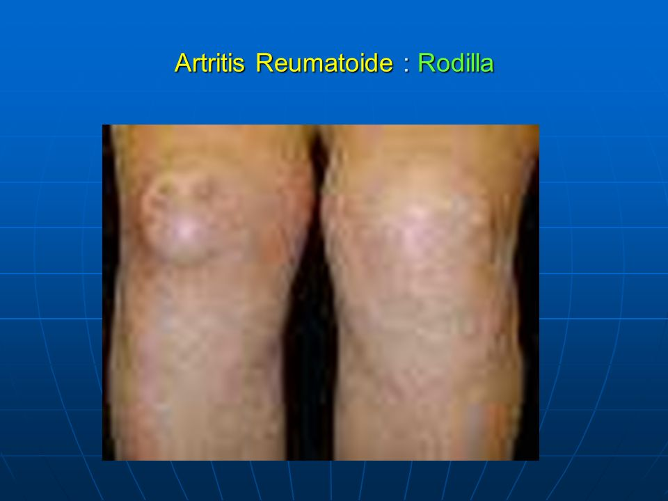 Artritis Reumatoide : Rodilla
