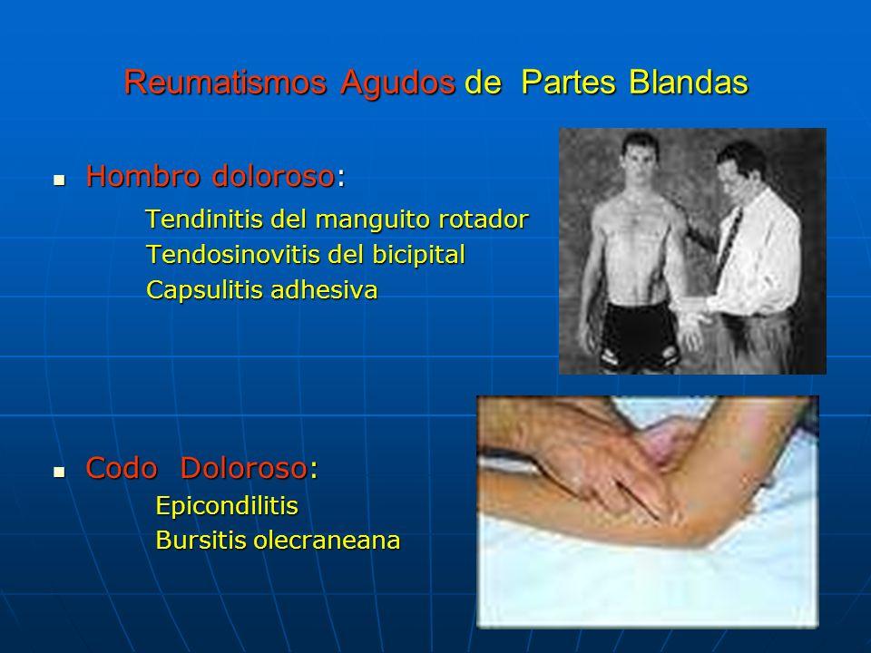 Reumatismos Agudos de Partes Blandas