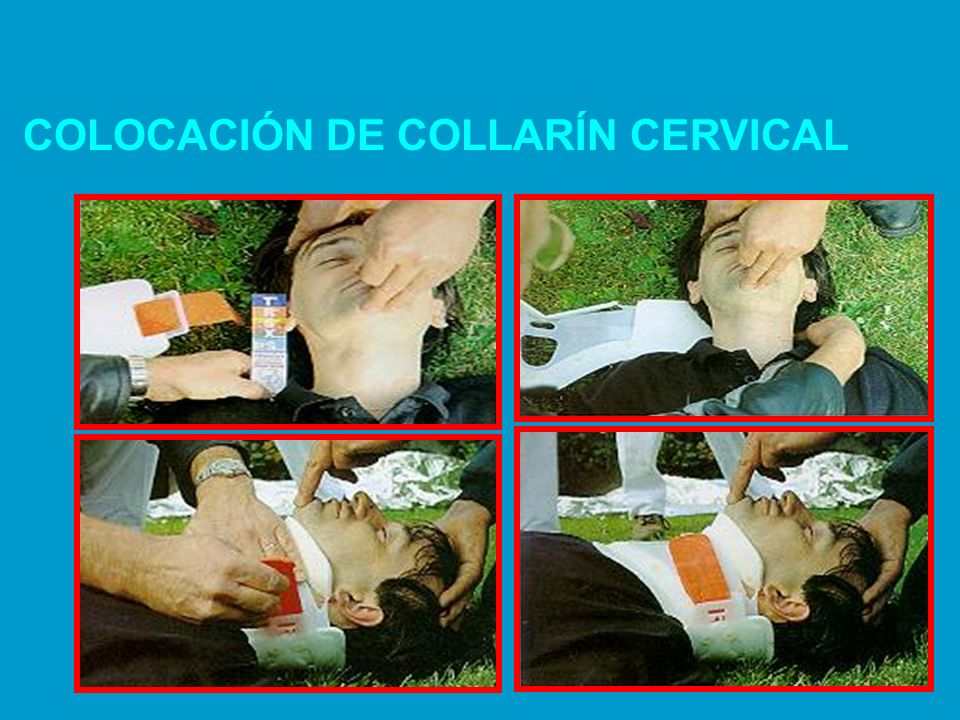 COLOCACIÓN DE COLLARÍN CERVICAL