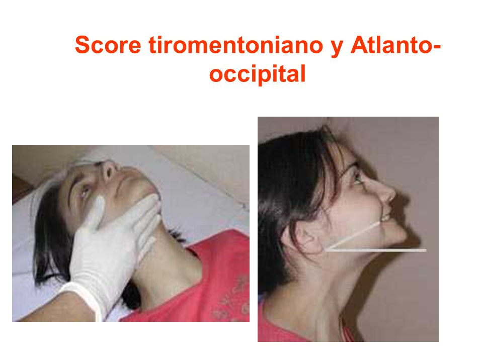 Score tiromentoniano y Atlanto-occipital
