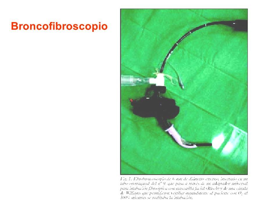 Broncofibroscopio