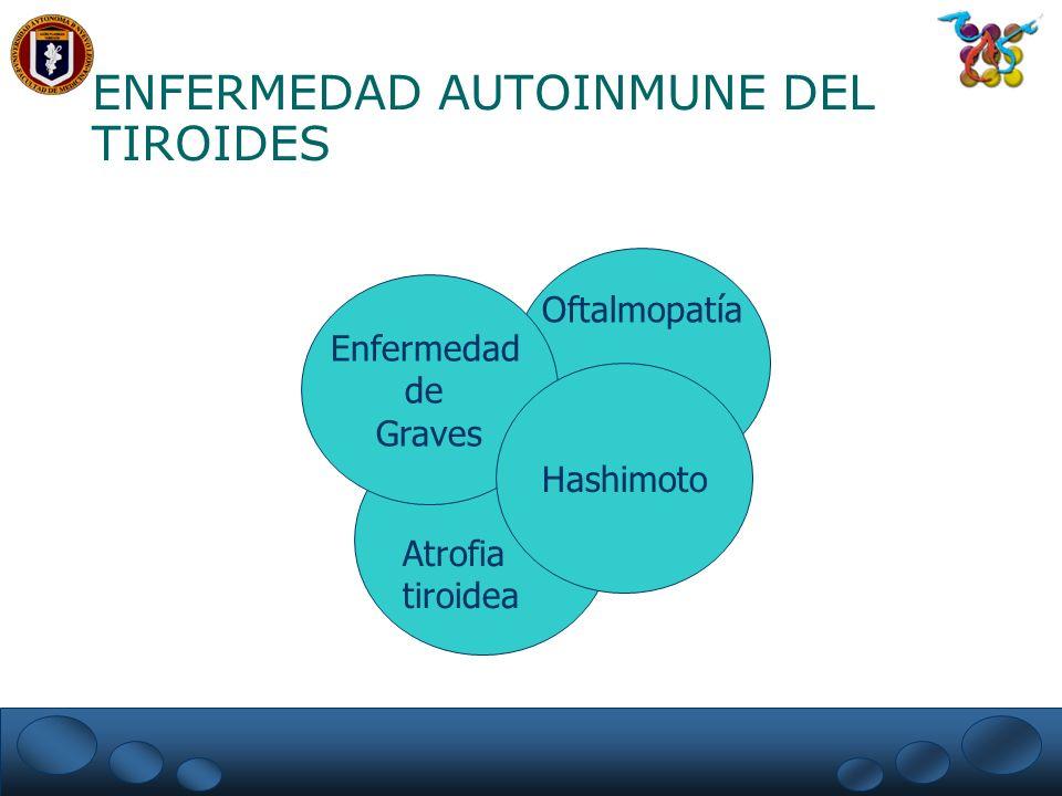 ENFERMEDAD AUTOINMUNE DEL TIROIDES