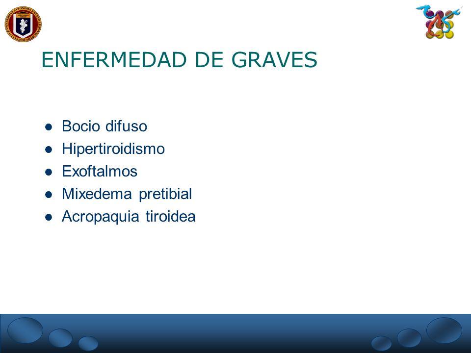 ENFERMEDAD DE GRAVES Bocio difuso Hipertiroidismo Exoftalmos