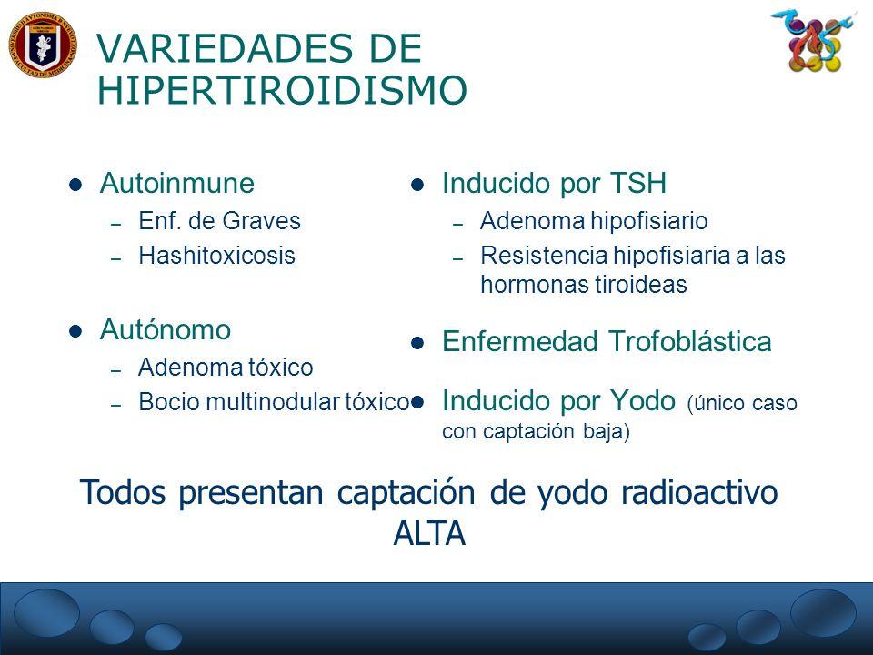 VARIEDADES DE HIPERTIROIDISMO