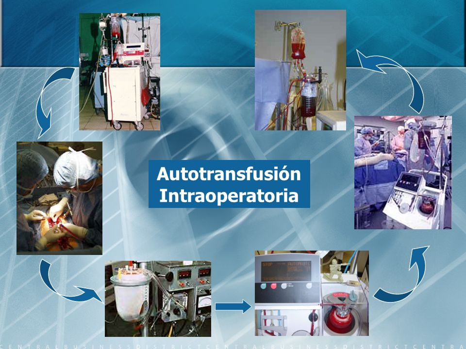 Autotransfusión Intraoperatoria