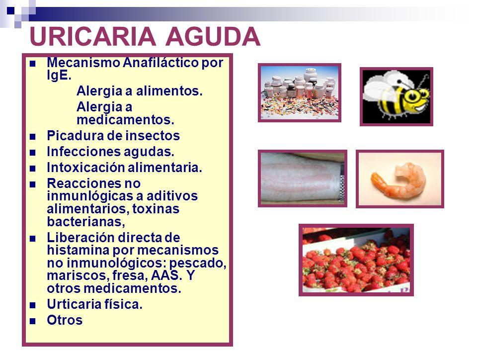 URICARIA AGUDA Mecanismo Anafiláctico por IgE. Alergia a alimentos.
