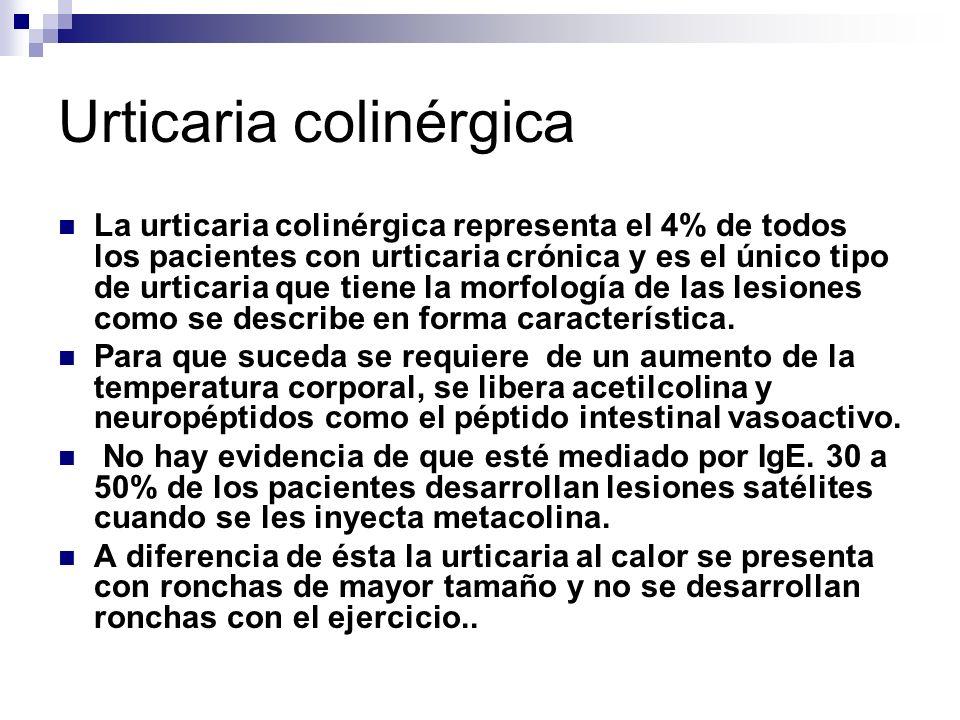 Urticaria colinérgica