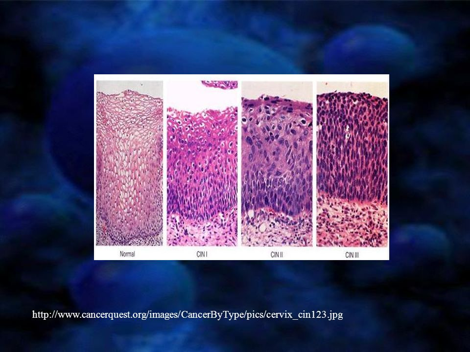 http://www. cancerquest. org/images/CancerByType/pics/cervix_cin123