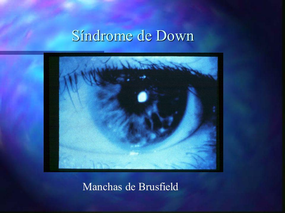 Síndrome de Down Manchas de Brusfield