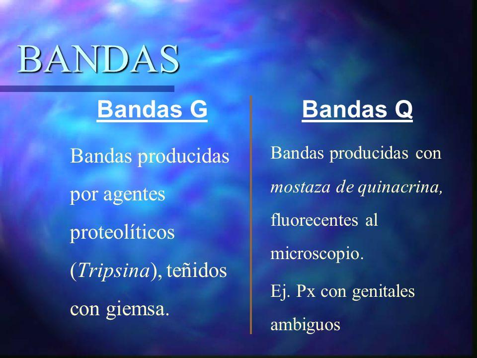 BANDAS Bandas G Bandas Q