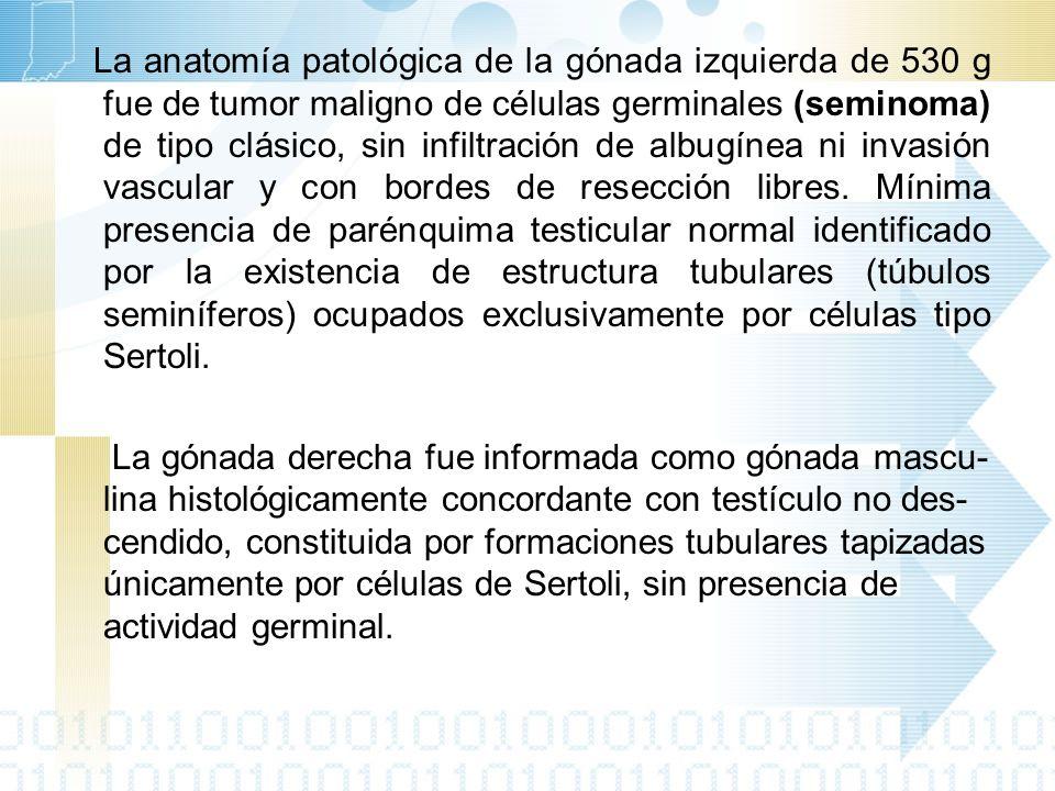 La anatomía patológica de la gónada izquierda de 530 g fue de tumor maligno de células germinales (seminoma) de tipo clásico, sin infiltración de albugínea ni invasión vascular y con bordes de resección libres.