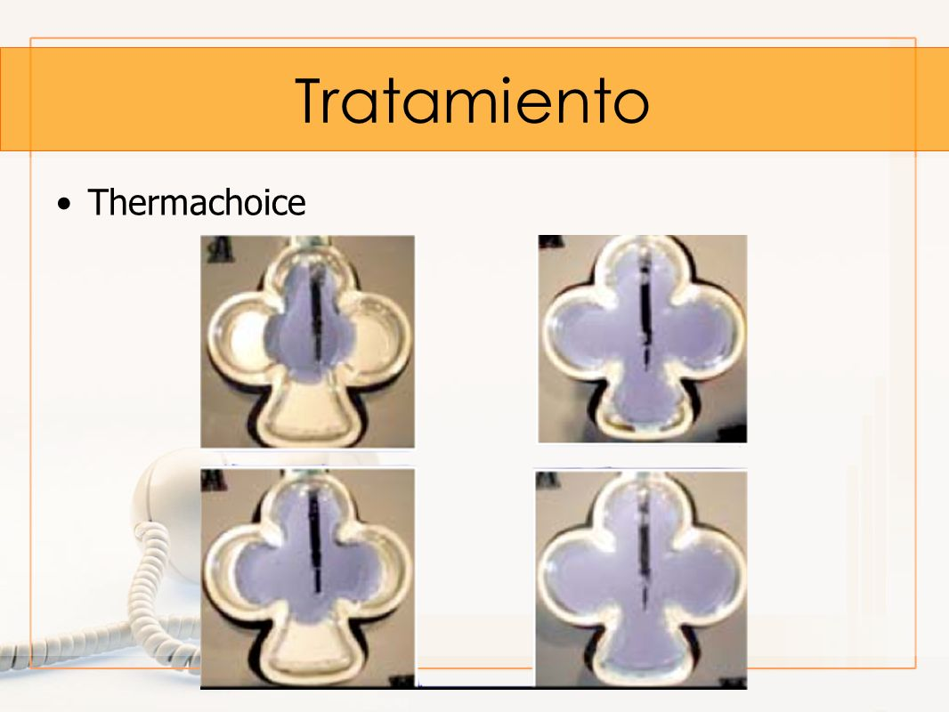Tratamiento Thermachoice