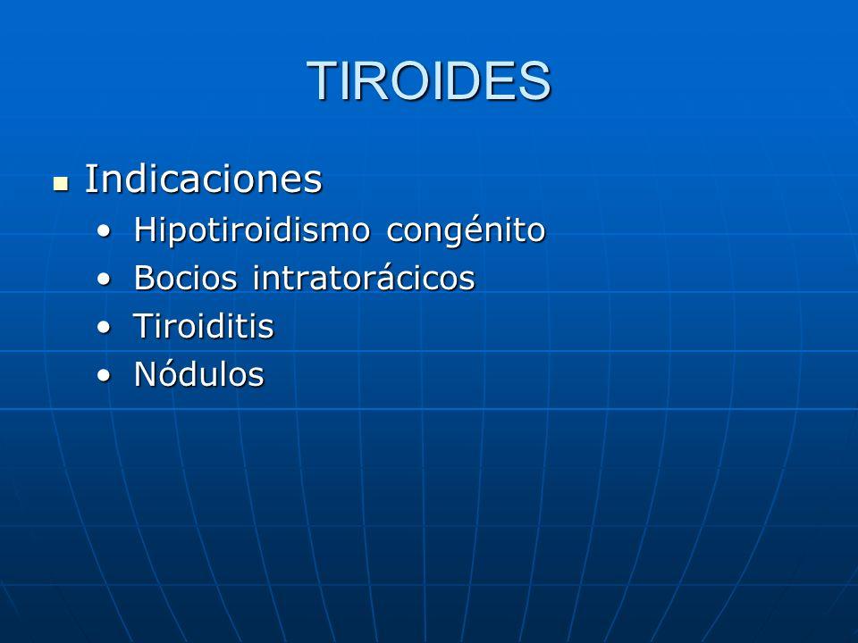 TIROIDES Indicaciones Hipotiroidismo congénito Bocios intratorácicos