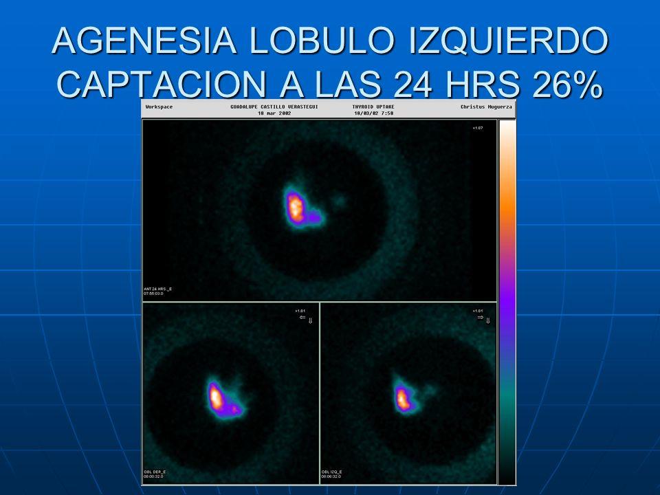 AGENESIA LOBULO IZQUIERDO CAPTACION A LAS 24 HRS 26%