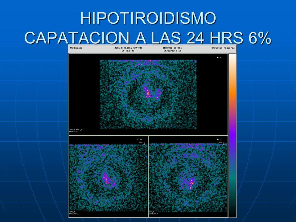 HIPOTIROIDISMO CAPATACION A LAS 24 HRS 6%