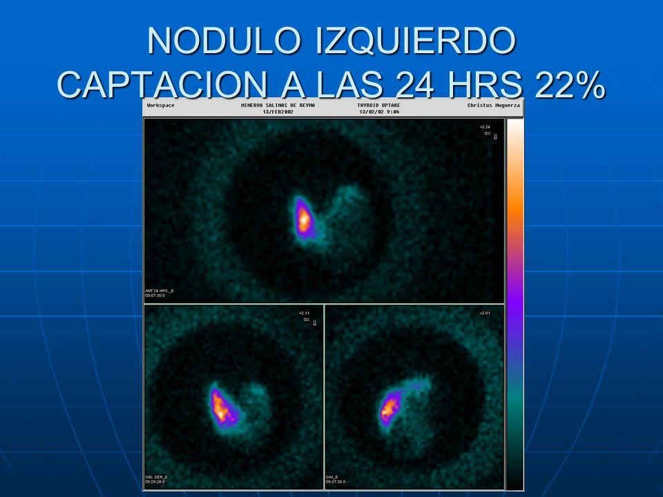 NODULO IZQUIERDO CAPTACION A LAS 24 HRS 22%