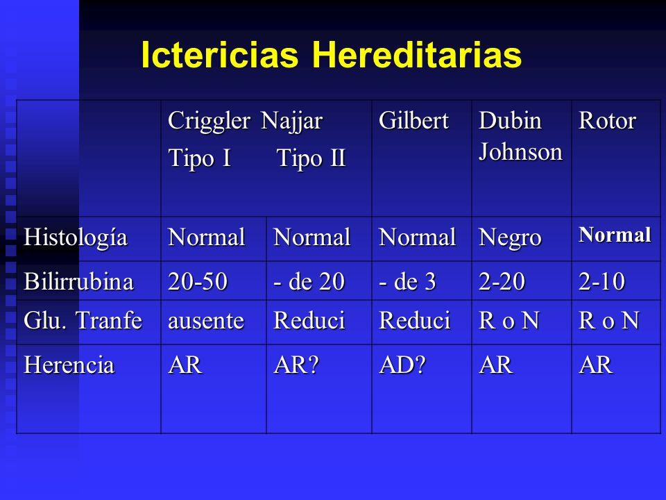 Ictericias Hereditarias