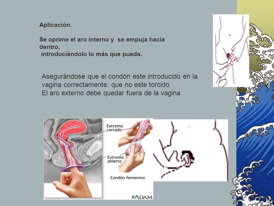 El aro externo debe quedar fuera de la vagina
