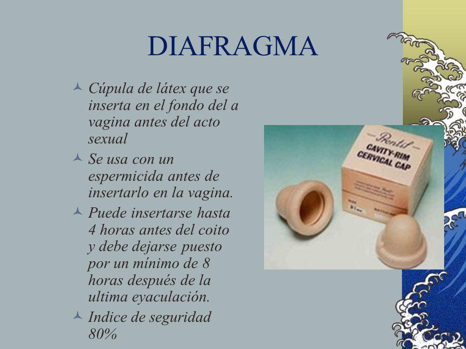DIAFRAGMACúpula de látex que se inserta en el fondo del a vagina antes del acto sexual. Se usa con un espermicida antes de insertarlo en la vagina.