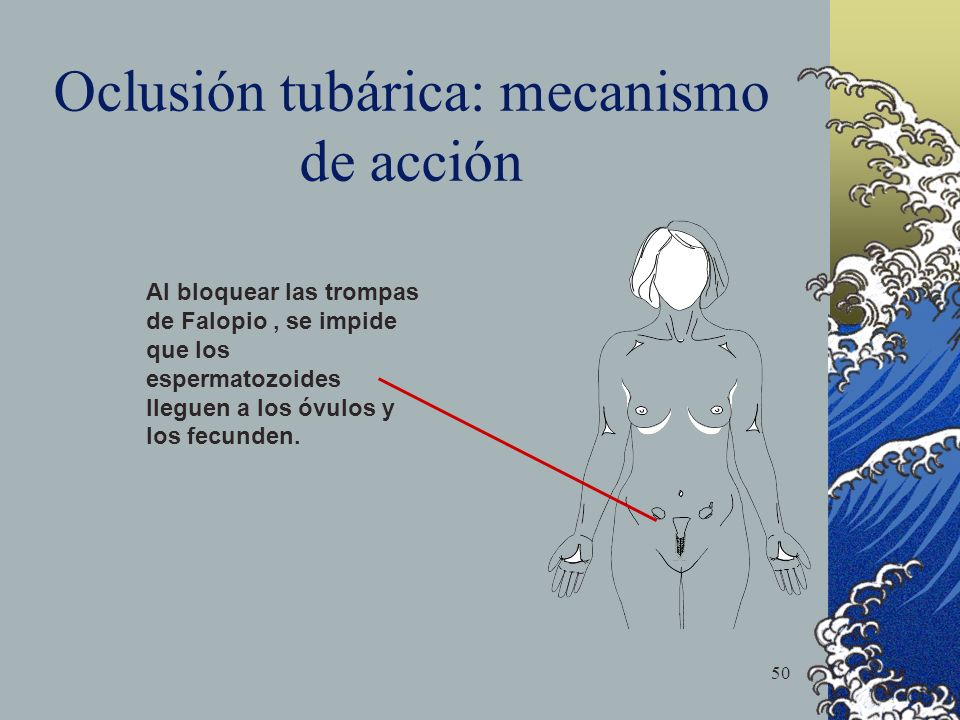 Oclusión tubárica: mecanismo de acción