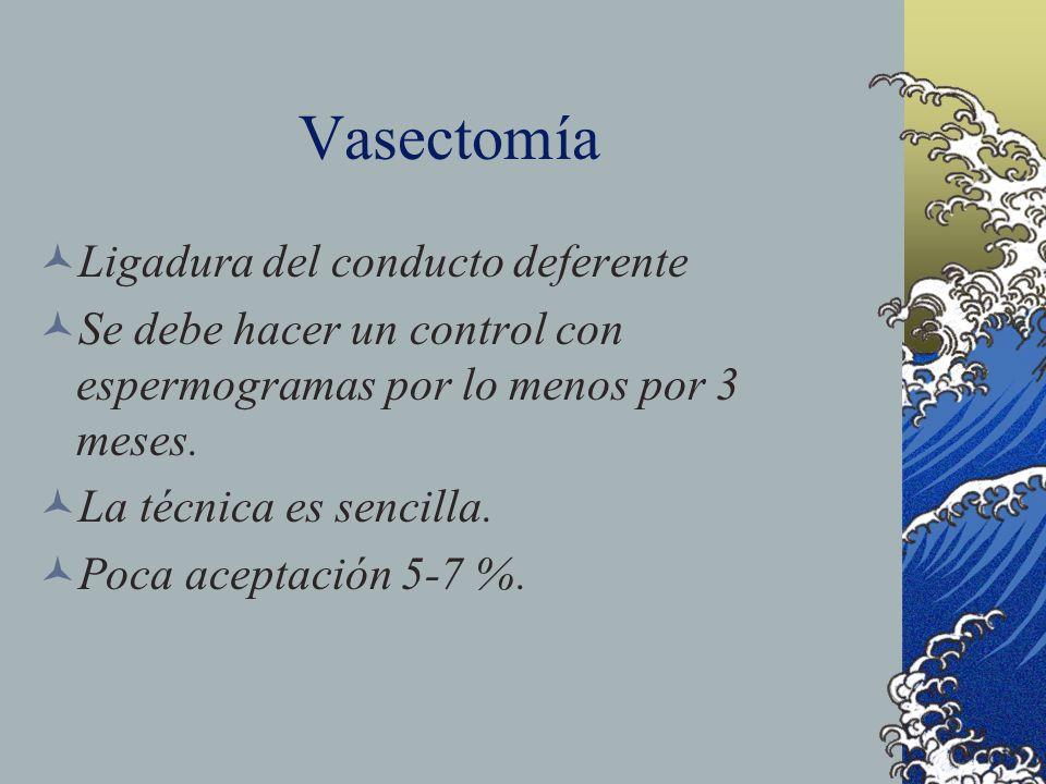 Vasectomía Ligadura del conducto deferente