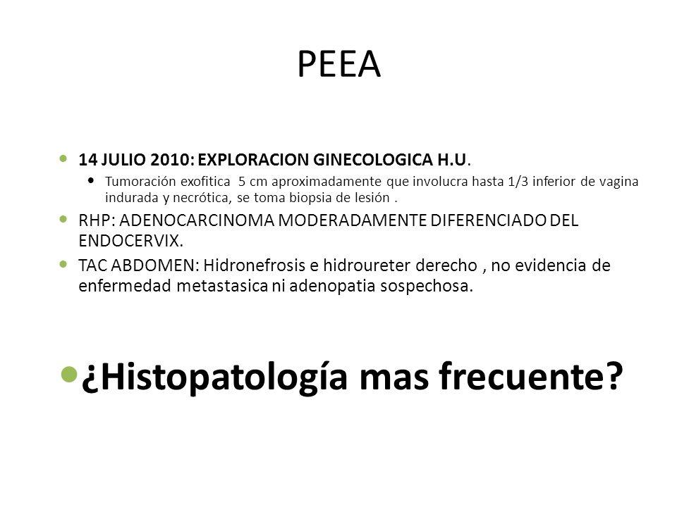 ¿Histopatología mas frecuente
