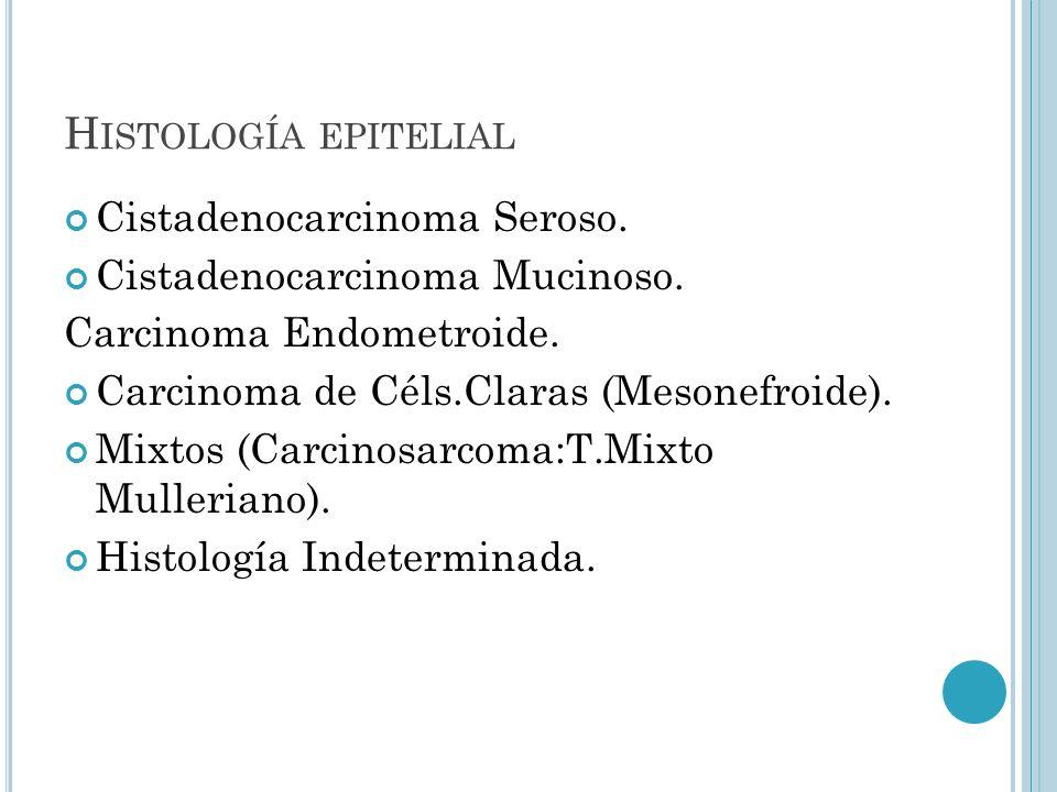 Histología epitelial Cistadenocarcinoma Seroso.