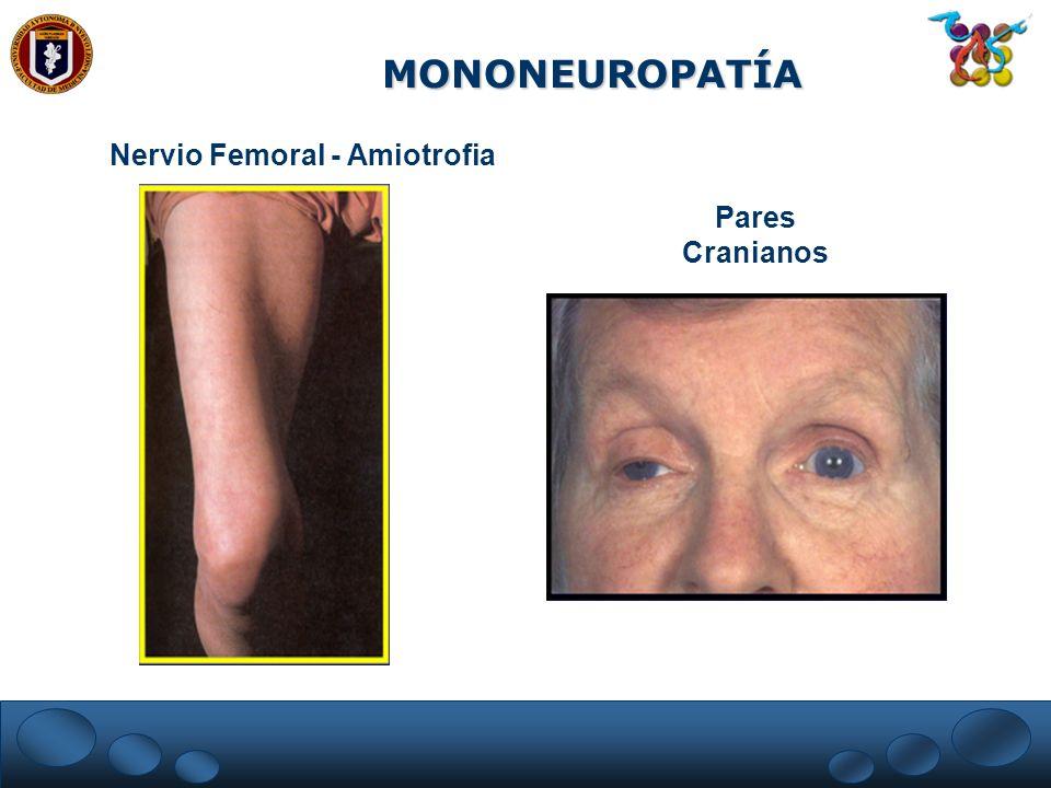 MONONEUROPATÍA Nervio Femoral - Amiotrofia Pares Cranianos