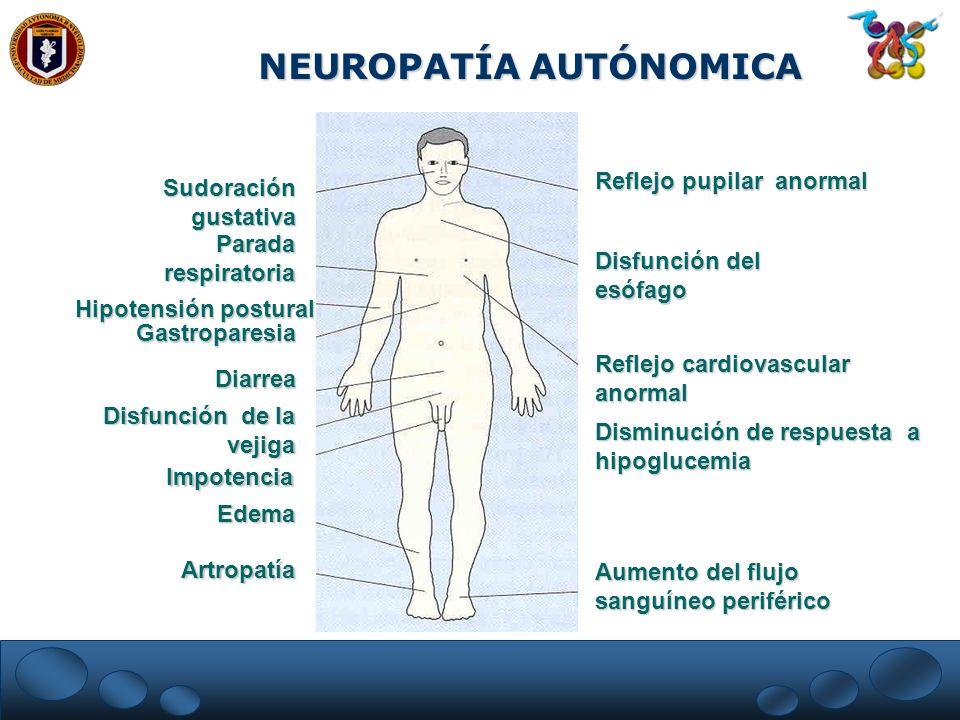 NEUROPATÍA AUTÓNOMICA
