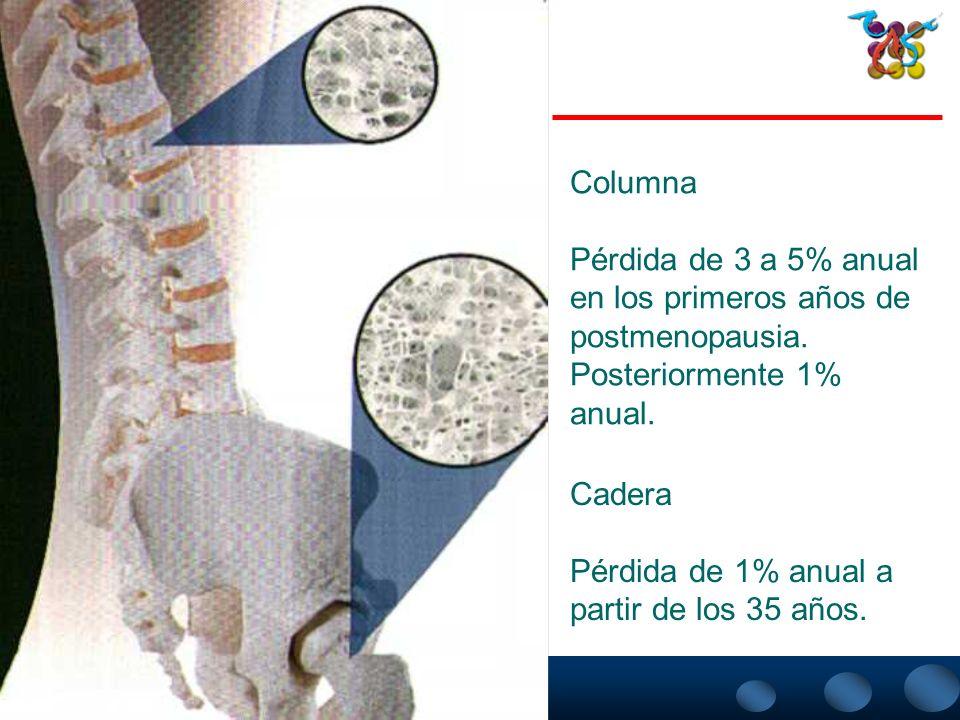 ColumnaPérdida de 3 a 5% anual. en los primeros años de. postmenopausia. Posteriormente 1% anual. Cadera.