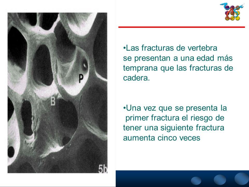 Las fracturas de vertebra