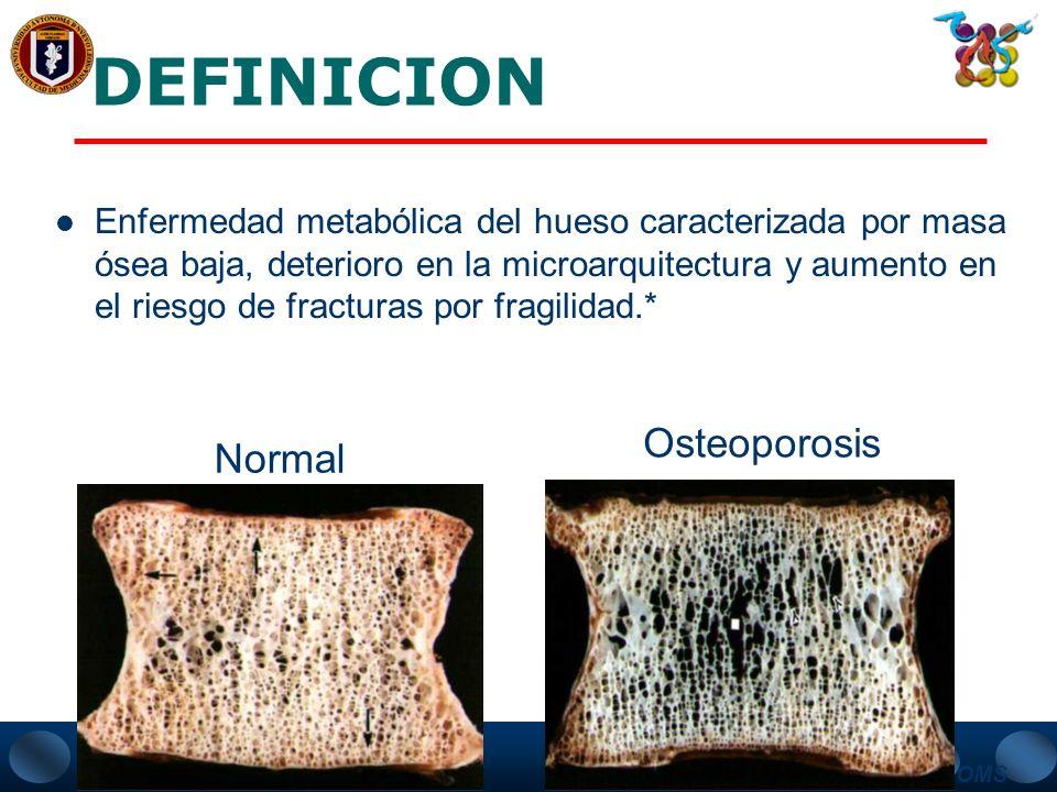 DEFINICION Osteoporosis Normal