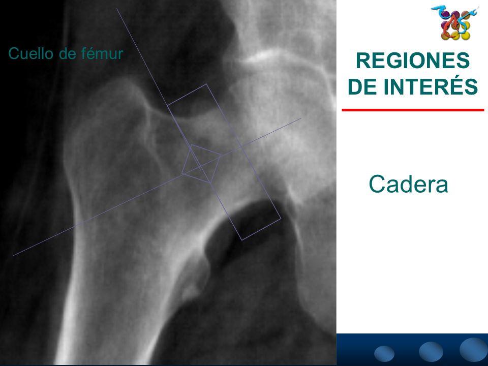 Cuello de fémur REGIONES DE INTERÉS Cadera