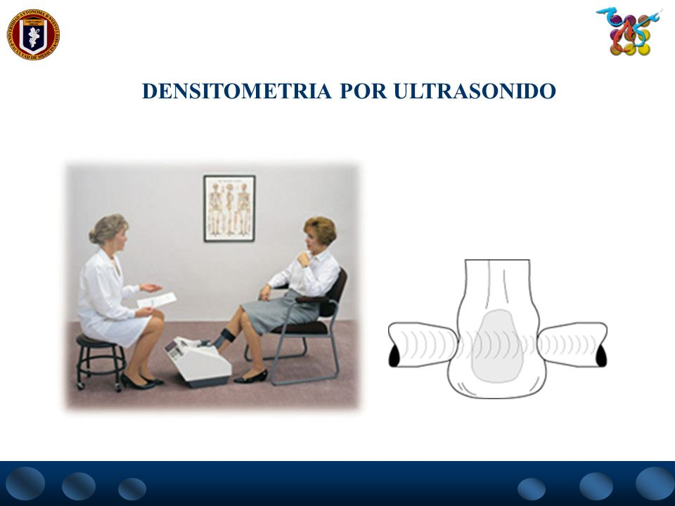 DENSITOMETRIA POR ULTRASONIDO