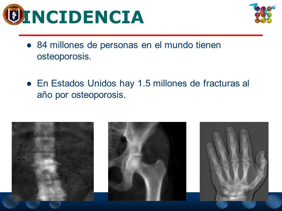 INCIDENCIA 84 millones de personas en el mundo tienen osteoporosis.