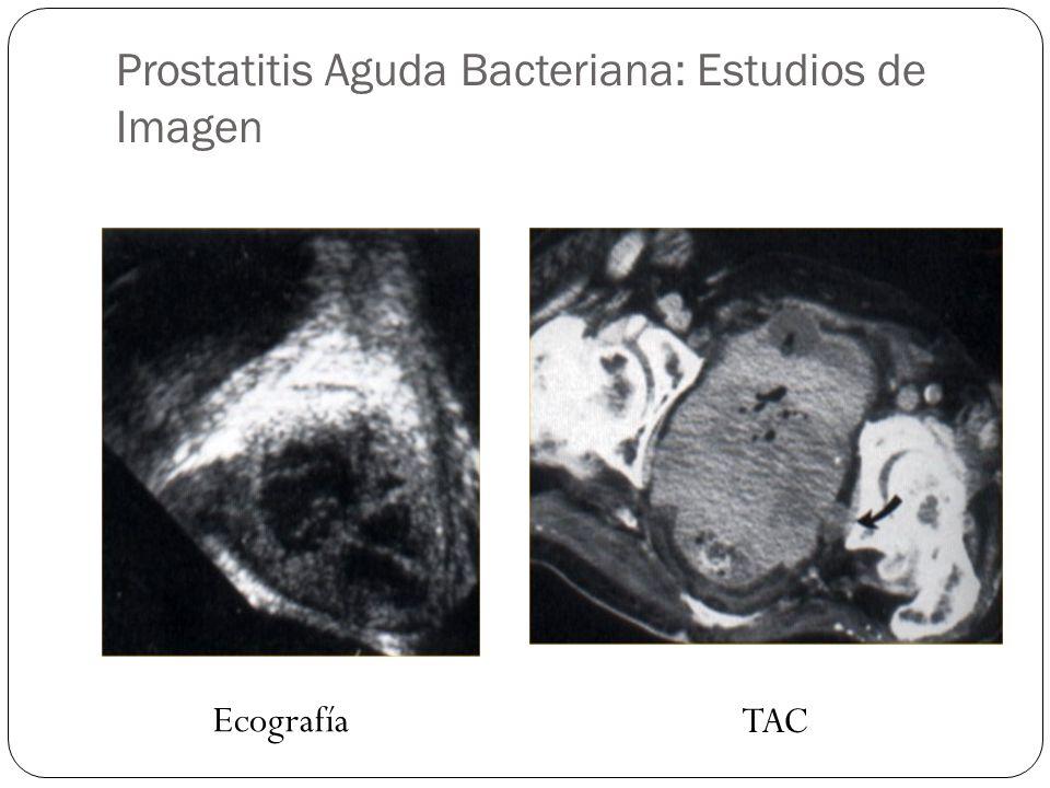 Prostatitis Aguda Bacteriana: Estudios de Imagen