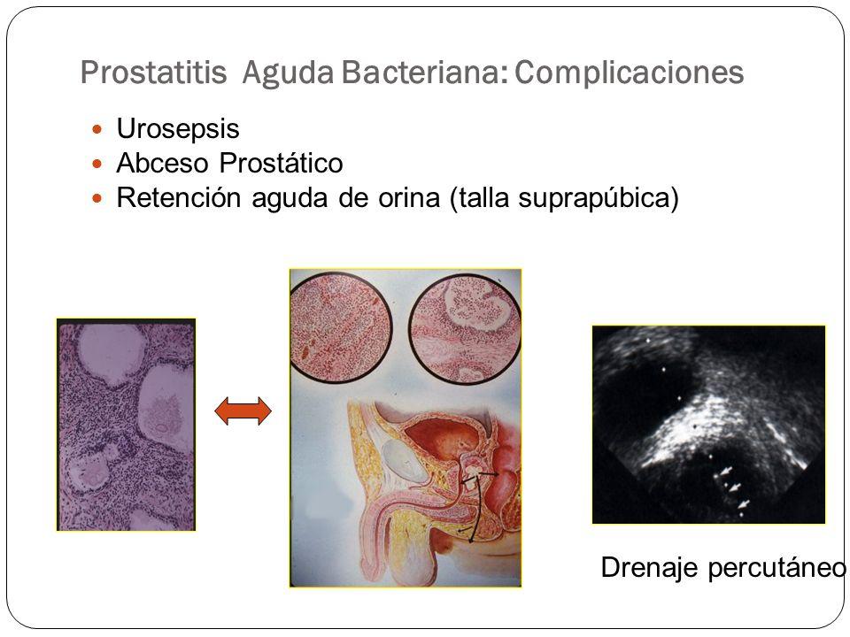 Prostatitis Aguda Bacteriana: Complicaciones