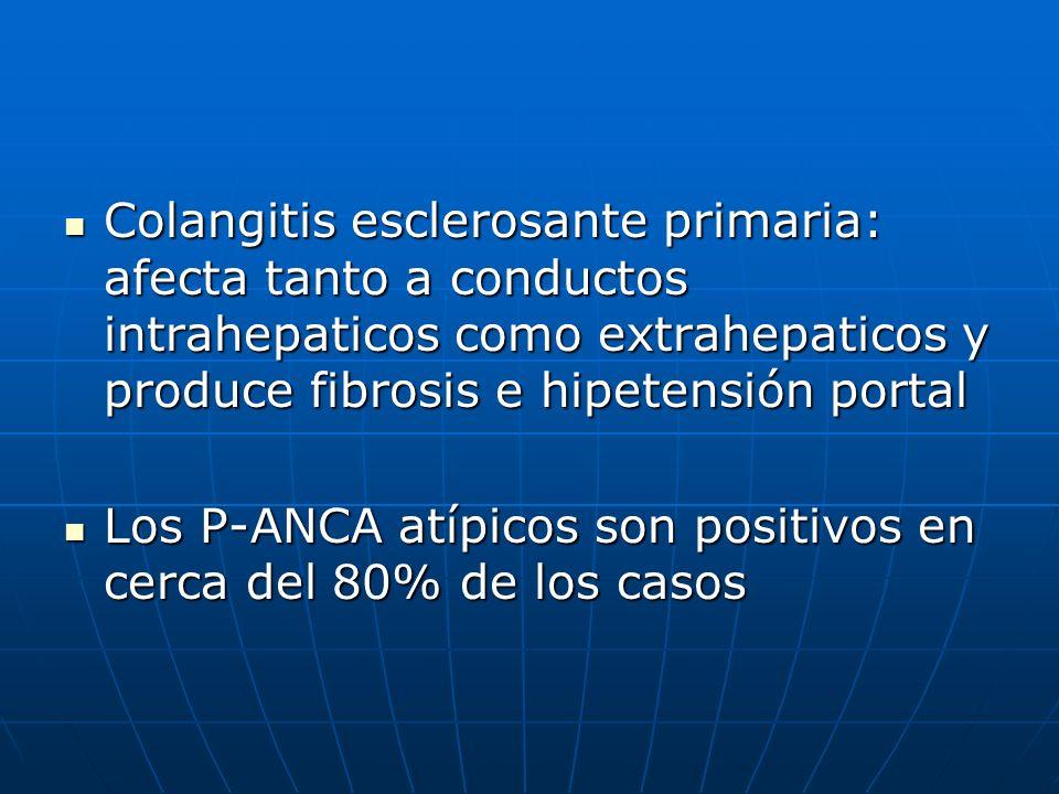 Colangitis esclerosante primaria: afecta tanto a conductos intrahepaticos como extrahepaticos y produce fibrosis e hipetensión portal