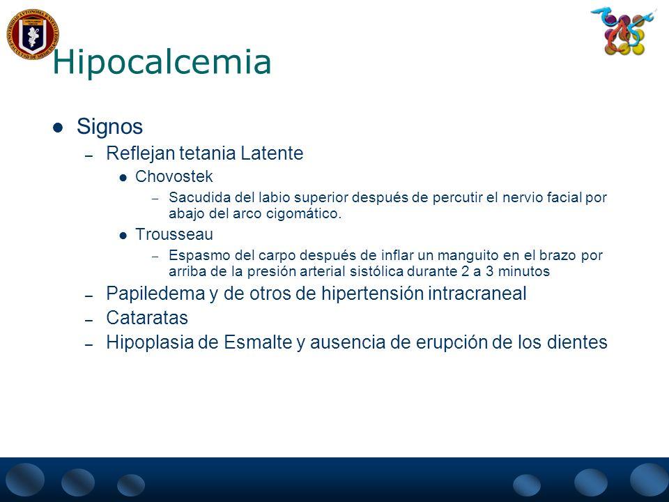 Hipocalcemia Signos Reflejan tetania Latente