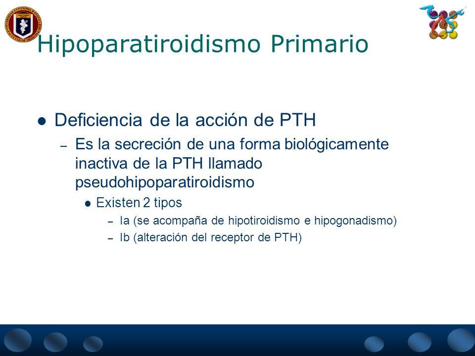 Hipoparatiroidismo Primario